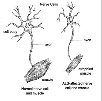 """Amyotrophic lateral sclerosis (ALS), often referred to as """"Lou Gehrig's Disease,"""" is a progressive neurodegenerative disease that affects nerve cells in the brain and the spinal cord. Motor neurons reach from the brain to the spinal cord and from the spinal cord to the muscles throughout the body. The progressive degeneration of the motor neurons in ALS eventually leads to their death. When the motor neurons die, the ability of the brain to initiate and control muscle movement is lost. With voluntary muscle action progressively affected, patients in the later stages of the disease may become totally paralyzed. (Image and text from http://www.als-ny.org/index.php?page=about_als&sub=what_is)"""